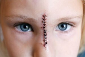 Disfigurement Injury Attorney