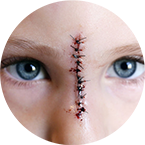 Disfigurement Injury Attorney