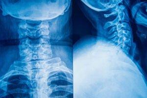 Spine Injury Attorney
