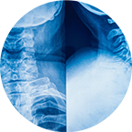 Spine Injury Attorney
